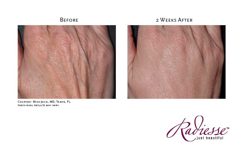 Treatment of Hands with Radiesse